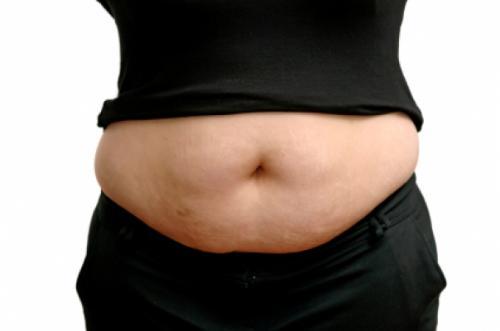 операция убрать жир с живота